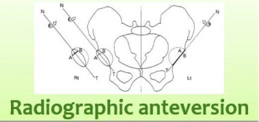 Radiographic Anteversion